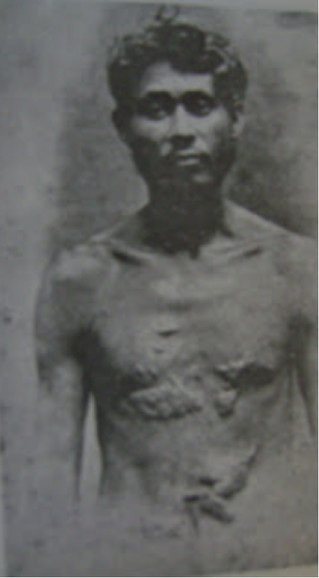 Cayo Baez showing his scarred chest after being beaten by U.S. Occupation officials. Image: elgavillero.blogpost.com